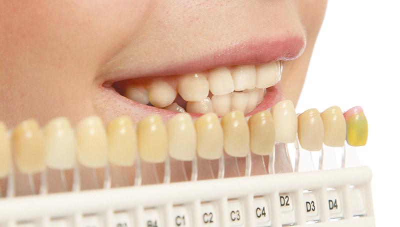 ฟันขาว ฟันเหลือง สุขภาพฟัน เคล็ดลับ