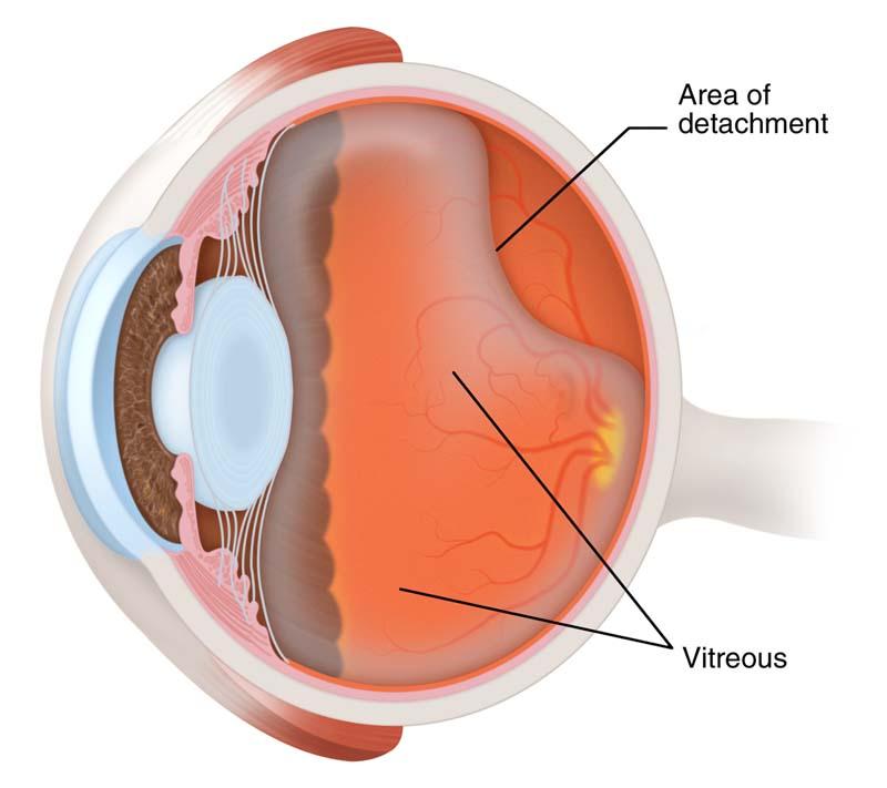 โรควุ้นตาเสื่อม (วุ้นตาหดลง)