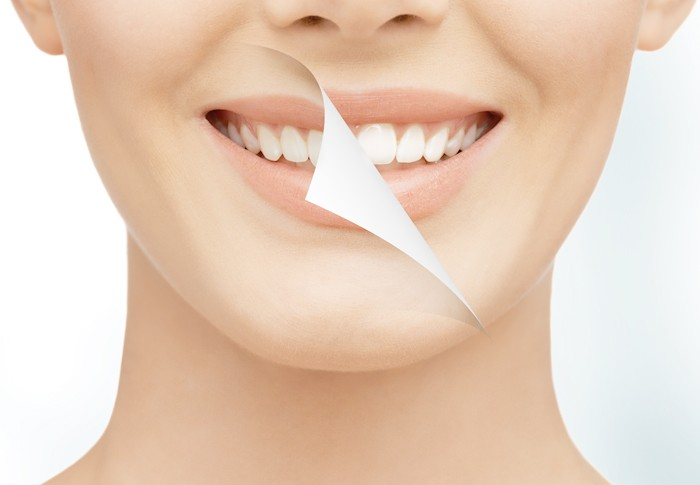 การฟอกสีฟัน ฟอกฟันขาว