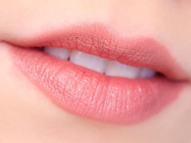 การดูแลปาก บำรุงริมฝีปาก ริมฝีปากคล้ำ สุขภาพปาก