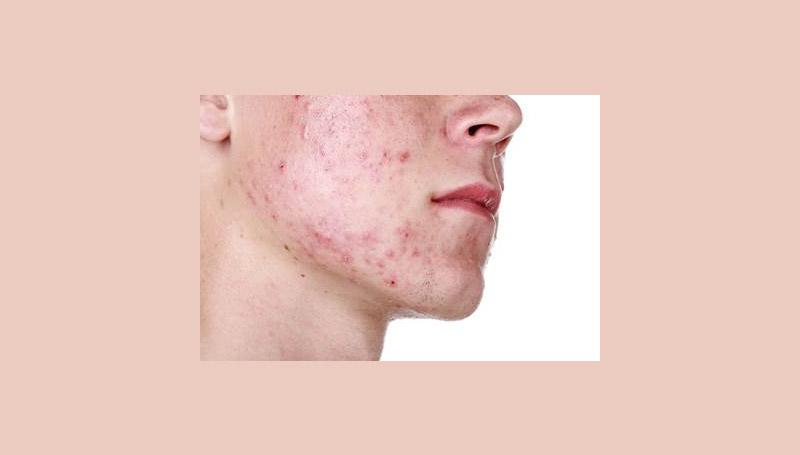 acne สิว