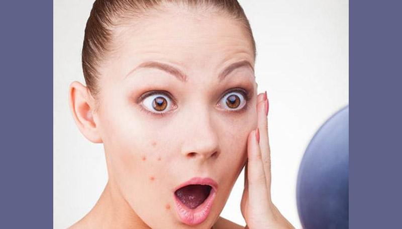 acne ความเชื่อ สาเหตุของสิว สิว