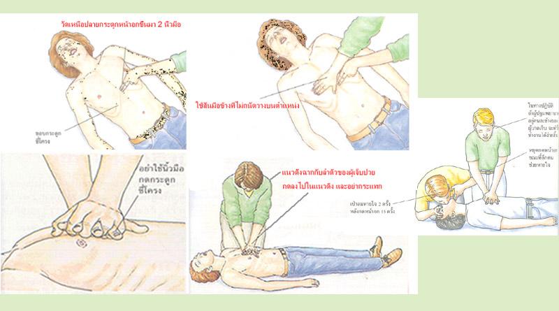 CPR การปั๊มหัวใจ ถูกวิธี