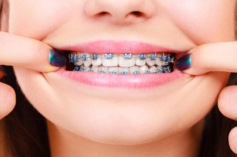 จัดฟัน ฟัน รีเทนเนอร์ สุขภาพในช่องปาก