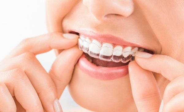 การจัดฟัน สุขภาพฟัน สุขภาพในช่องปาก