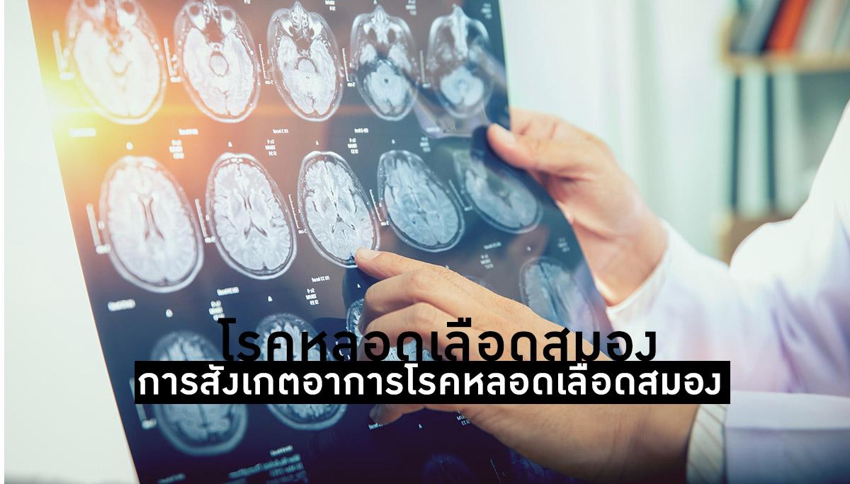 สมอง โรคหลอดเลือดสมอง