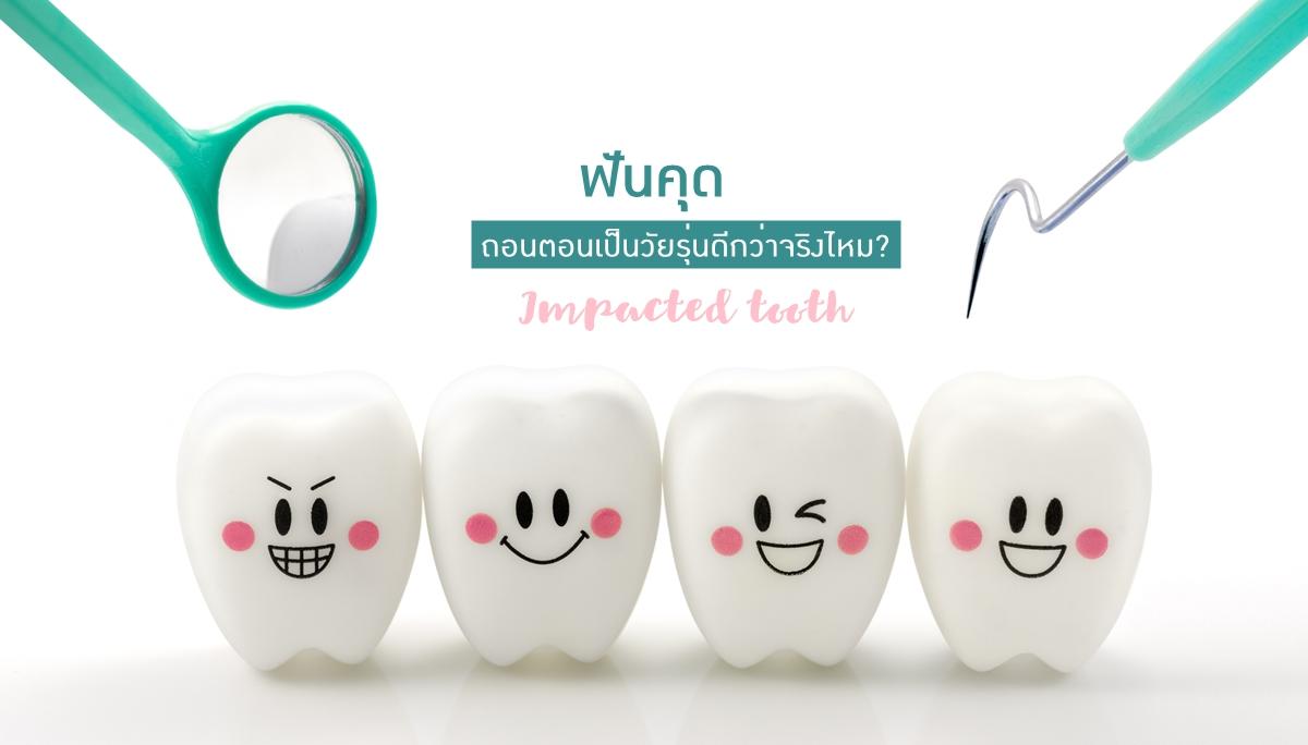 ฟันคุด สุขภาพฟัน